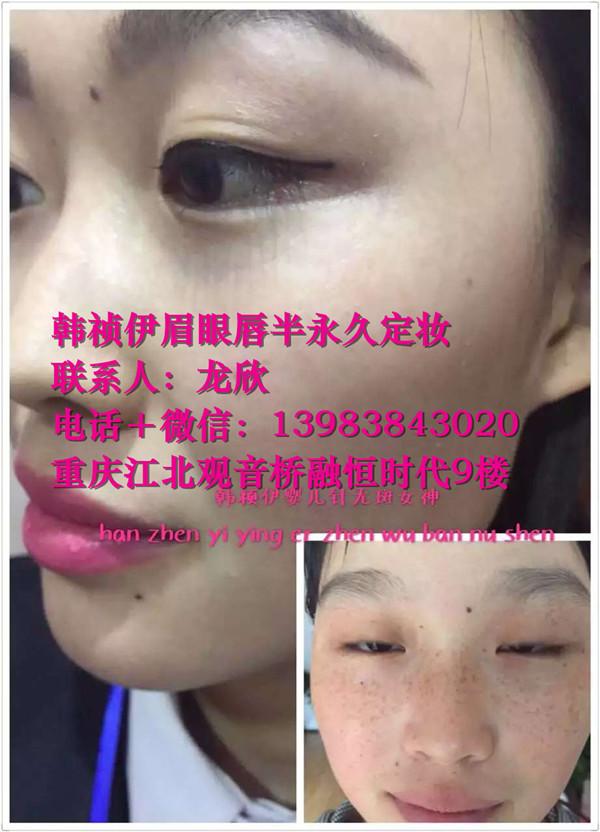 好的韩式皮肤管理培训学院@万州哪里有mts