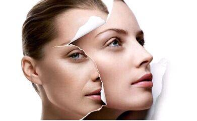 皮肤管理利用天然方法刺激骨胶原增生