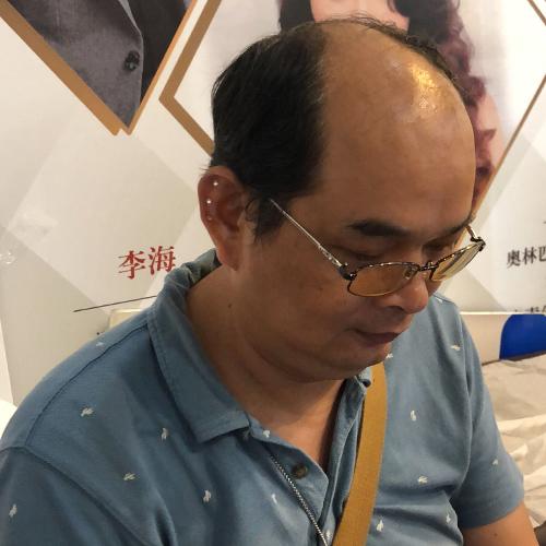 银川兴庆区织发补发多少钱,和美黛健康增发专业技术值得信任欢