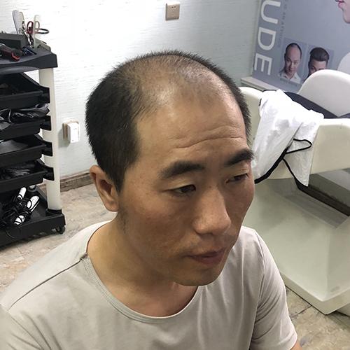 银川永宁县哪有定制假发的,和美黛解决不同程度的头发问题欢迎