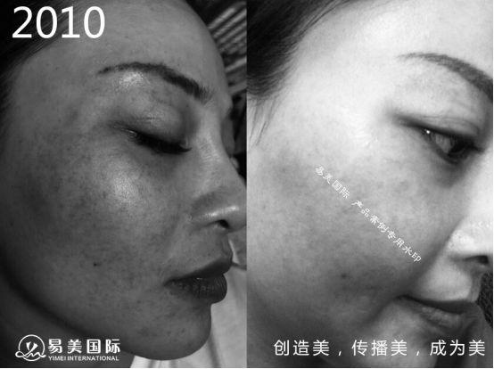10年口碑认证,易美国际专业肌肤问题解决方案提供商